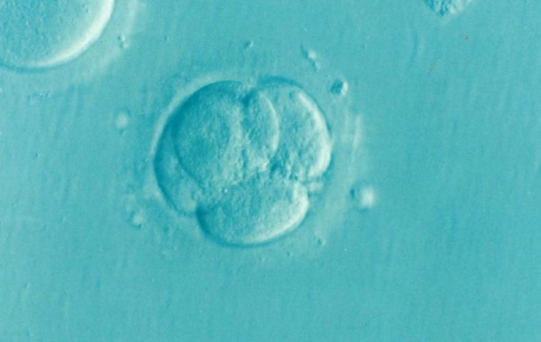Schwangerschaftsabbruch keine ärztliche Dienstleistung wie jede andere